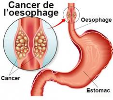 CENTRE Yaoundé LE CANCER DE L'ŒSOPHAGE
